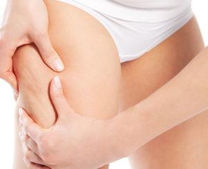 beneficios de la ultracavitacion